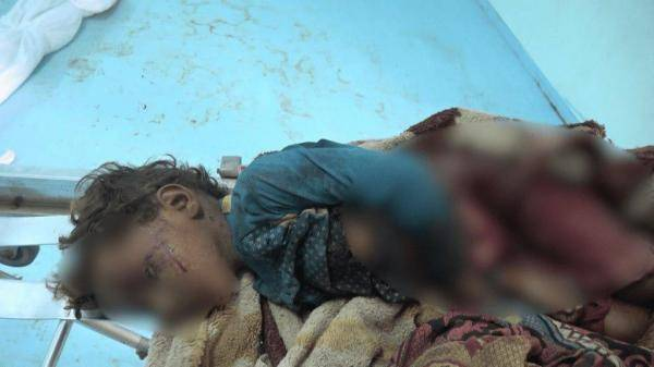 استشهاد طفل وإصابة شقيقه جراء انفجار ذخيرة مفخخة من مخلفات مليشيات الحوثي في التحيتا