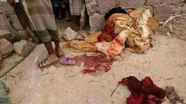 شاب بتعز يذبح والدته بطريقة بشعة ويصيب والده وشقيقه...! – (صورة+أسماء وتفاصيل)