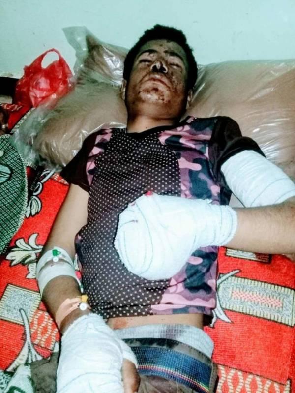 ضحية جديدة لألغام مليشيات الحوثي في مريس &#34الضالع&#34