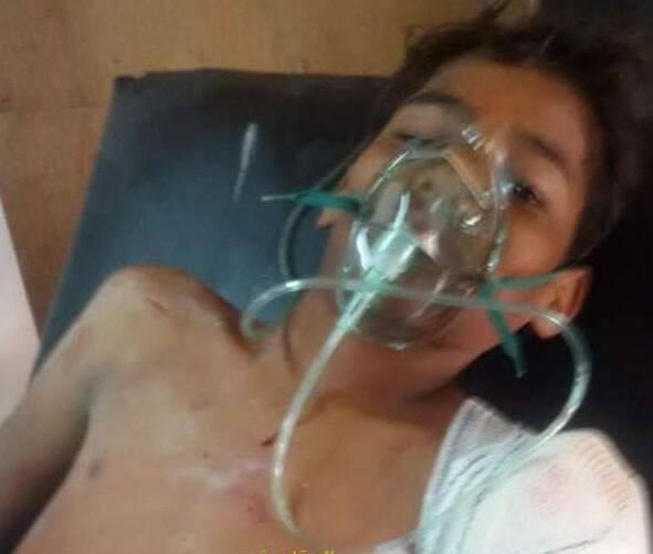 """إصابة طفل بجروح بليغة خلال قصف مليشيا الحوثي لـ""""الشجيرة"""" بمديرية الدريهمي"""