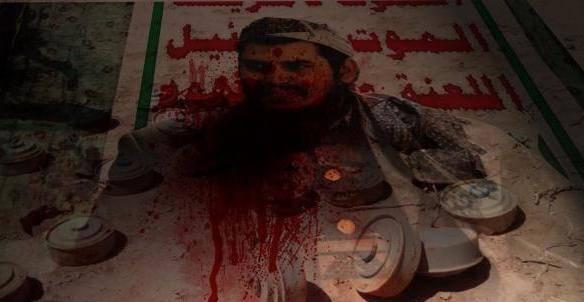 إصابة مواطن بإنفجار لغم أرضي من مخلفات الحوثي شرق المخا