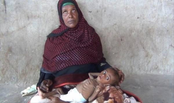 مسؤول أممي: أطفال يمنيون تتهددهم المجاعة في أحضان أمهاتهم العاجزات