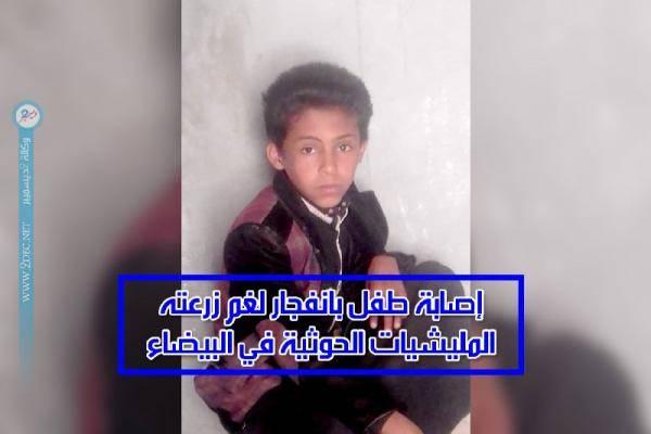إصابة طفل بانفجار لغم زرعته المليشيات الحوثية في البيضاء – (الاسم)