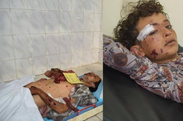 تقرير حقوقي يكشف إجمالي جرائم المليشيات الحوثية  من مارس 2015  إلى يوليو 2019 في تعز