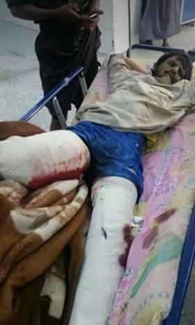 اصابة مواطن بلغم حوثي بصرواح غربي مأرب