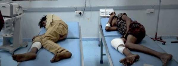 إصابة طفلين بنيران مليشيا الحوثي في مدينة حيس بالحديدة