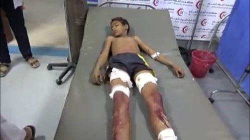 إصابة طفل بقذيفة اطلقتها مليشيا الحوثي غربي الجوف - الاسم