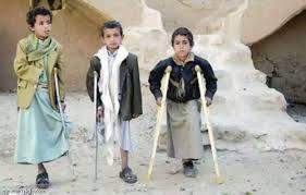 الأمم المتحدة تحذر من المخاطر الكارثية للألغام التي زرعتها مليشيا الحوثي في اليمن..!