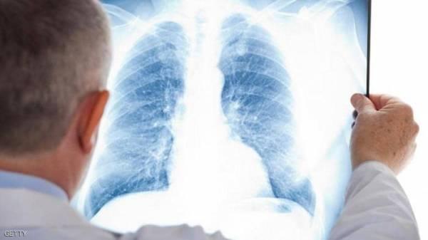 """علماء صينيون يتوصلون لعلاج لـ""""سرطان الرئة""""..!"""