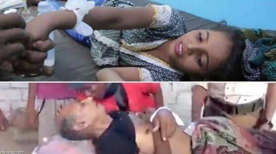 ثاني جريمة لمليشيا الحوثي بحق المدنيين في مدينة  حيس خلال ساعات