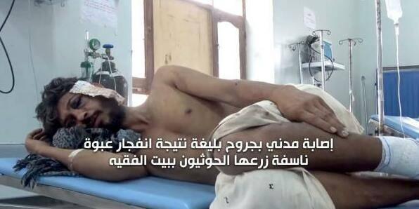 الحديدة.. إصابة مواطن بجروح بليغة نتيجة انفجار عبوة ناسفة زرعتها مليشيا الحوثي في منطقة الجاح