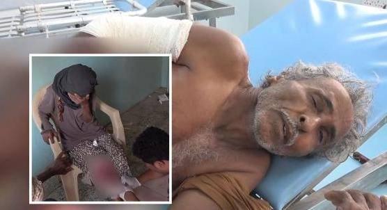 """مدنيان من أسرة واحدة ضحايا لـ""""عدوان حوثي جديد"""" على  حيس جنوب الحديدة"""