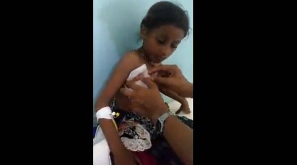"""عبوة حوثية على هيئة """"علبة غذاء"""" تكتب نهاية حياة الطفل محمد وتدخل شقيقته العناية نتيجة إصابات خطيرة"""